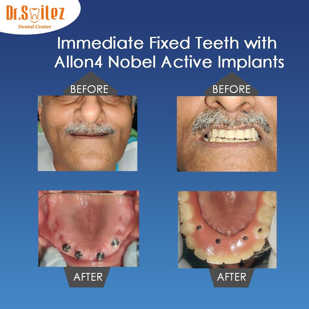 Dental Implants Cost In Chennai